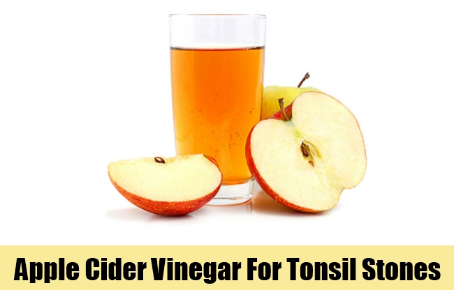 Apple Cider Vinegar For Tonsil Stones