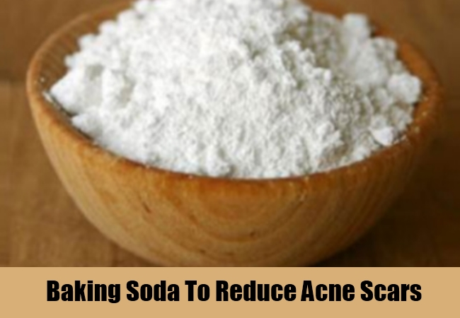 Baking Soda To Reduce Acne Scars