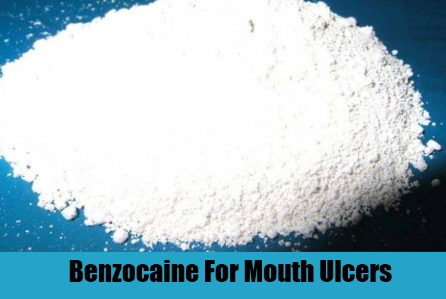 Benzocaine For Mouth Ulcers