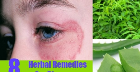 Herbal Remedies For Ringworm