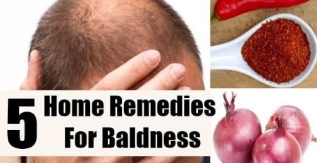 Home Remedies For Baldness