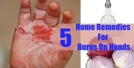 Home Remedies For Burns On Hands