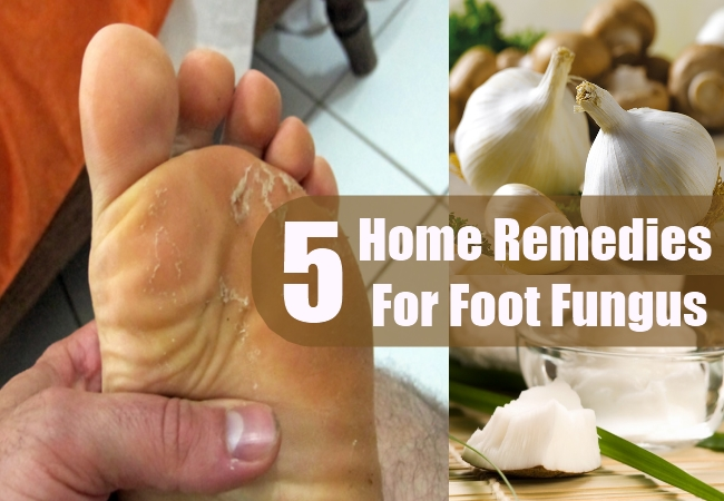 5 foot fungus home remedies treatments and cure