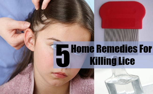Home Remedies For Killing Lice