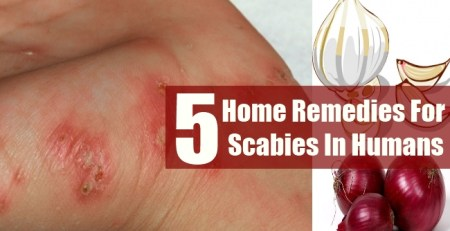 Home Remedies For Scabies In Humans