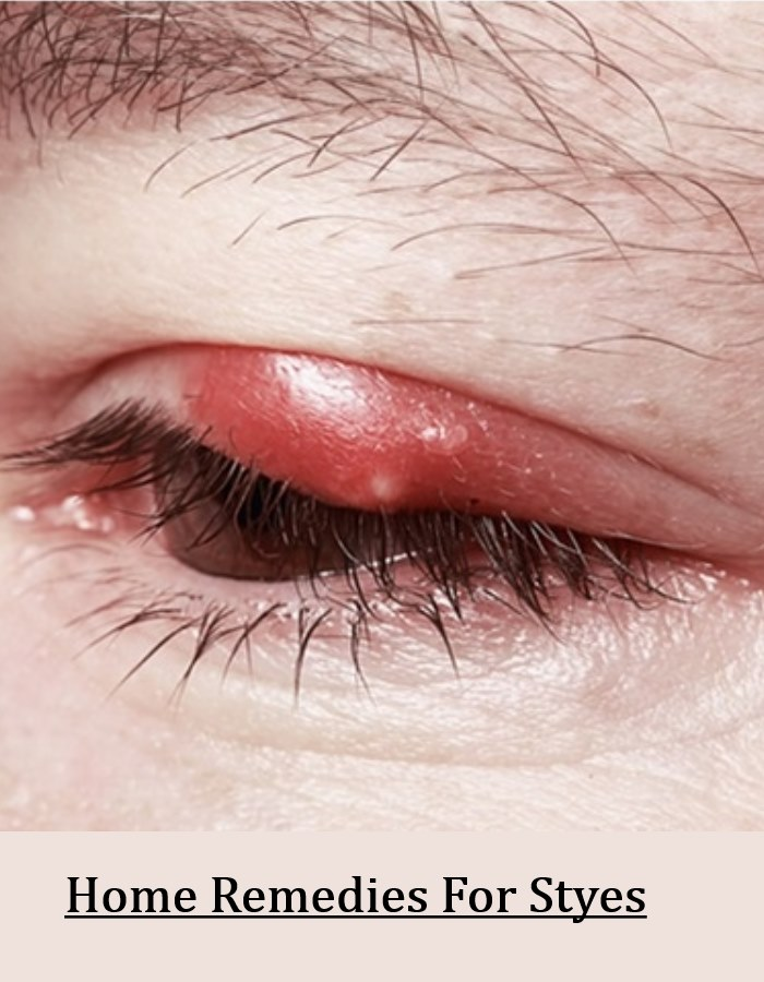 5 Effective Home Remedies For Styes