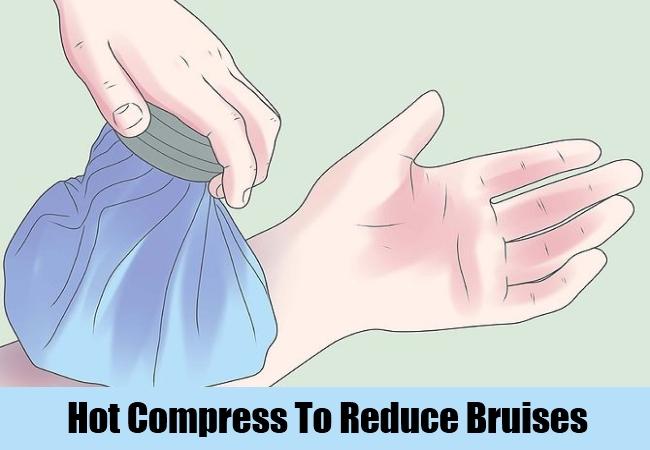 Hot Compress To Reduce Bruises