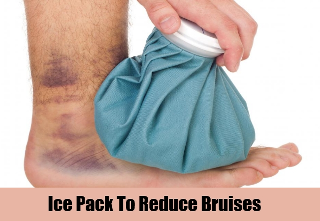 Ice Pack To Reduce Bruises