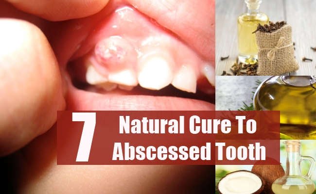 7 Natural Cures For Abscessed Tooth