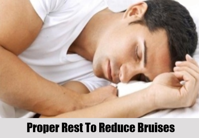 Proper Rest To Reduce Bruises
