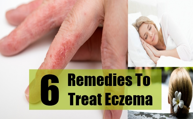 Remedies To Treat Eczema