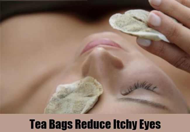 Tea Bags Reduce Itchy Eyes