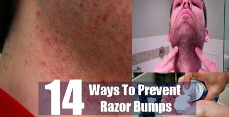 Ways To Prevent Razor Bumps