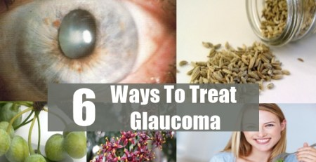 Ways To Treat Glaucoma