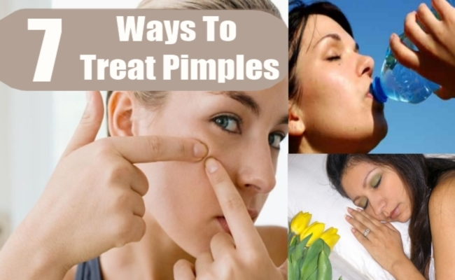 Ways To Treat Pimples Effectively