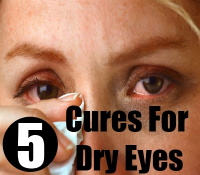 5 Best Natural Cures For Dry Eyes