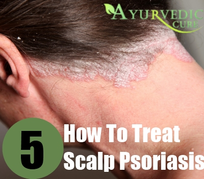 5 How To Treat Scalp Psoriasis