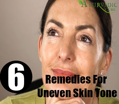 6 Home Remedies For Uneven Skin Tone