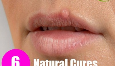 6 Natural Cures For Fever Blisters