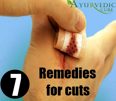 7 Magical Home Remedies For Cuts