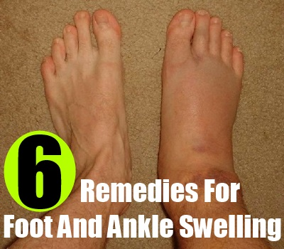 Easy Home Remedies For Foot And Ankle Swelling