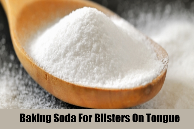 Baking Soda For Blisters On Tongue