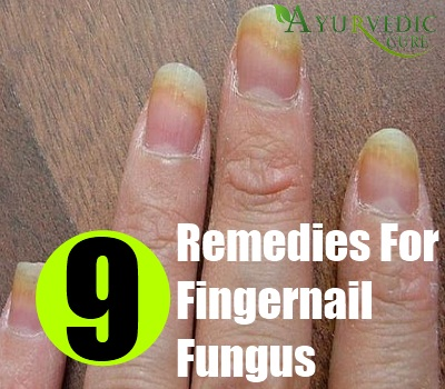 Fingernail Fungus Herbal Remedies Natural Treatments Cure
