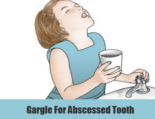 Gargle For Abscessed Tooth