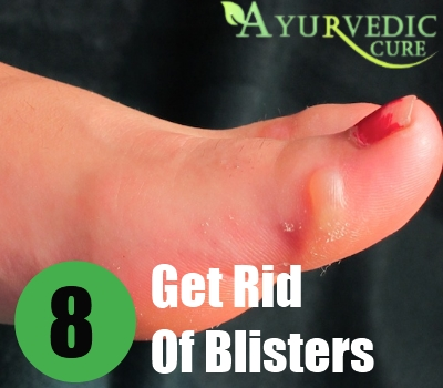 Get Rid Of Blisters