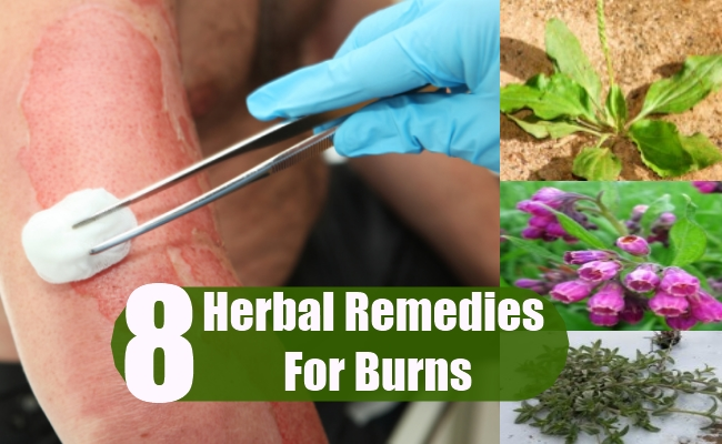 Herbal Remedies For Burns