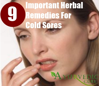 Important Herbal Remedies For Cold Sores