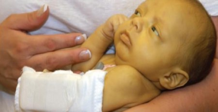 Jaundice In Newborn
