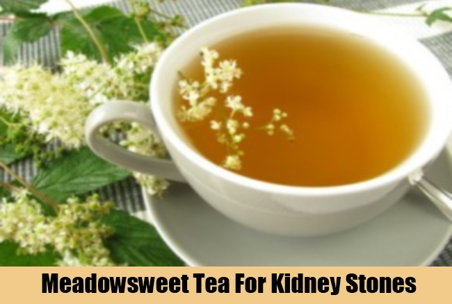 Top Tips To Treat Kidney Stones