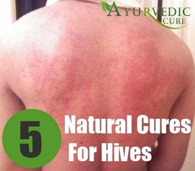 Natural Cures For Hives