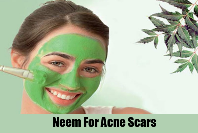 Neem For Acne Scars