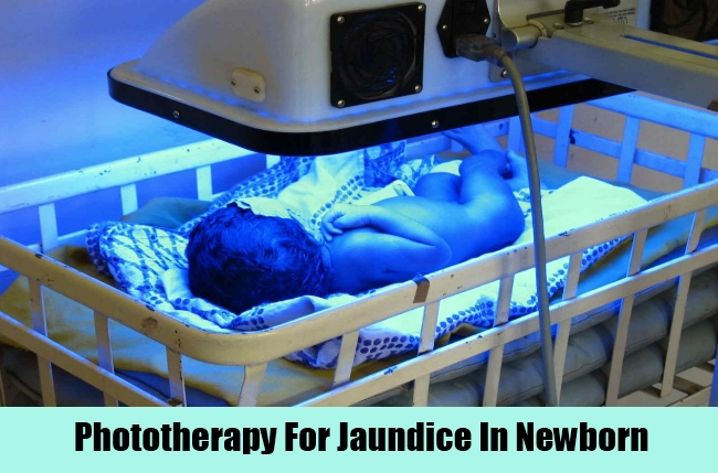 Jaundice In Newborn Home Remedies Natural Treatments And