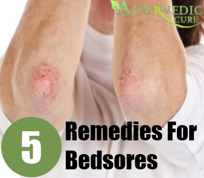Remedies For Bedsores