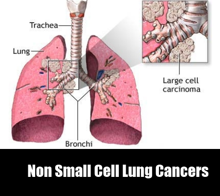 The Non Small Cell Lung Cancers (NSCLC)