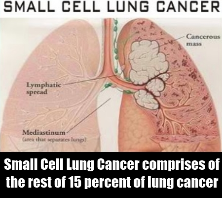The Small Cell Lung Cancers (SCLC)