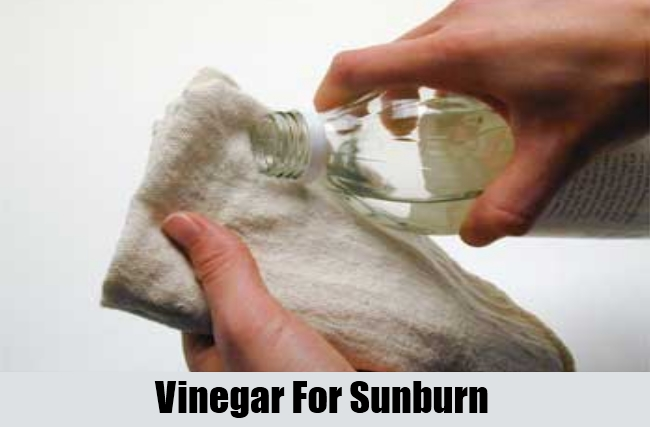 how to use vinegar for sunburn