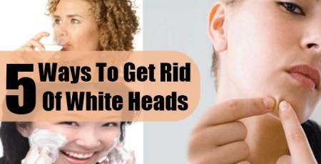 Ways To Get Rid Of White Heads