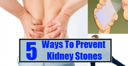 Ways To Prevent Kidney Stones