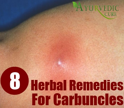 8 Amazing Herbal Remedies For Carbuncles