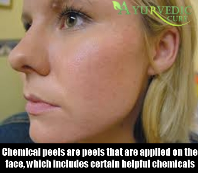 Chemical Peels And Photodynamic Therapy