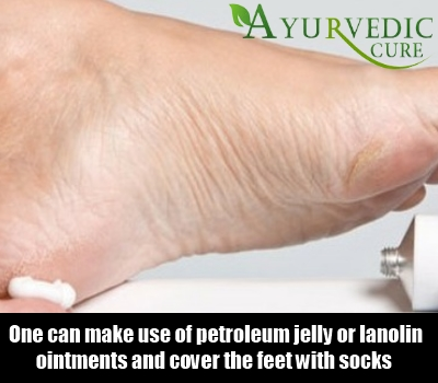 Easy Solution For Curing Cracked Feet