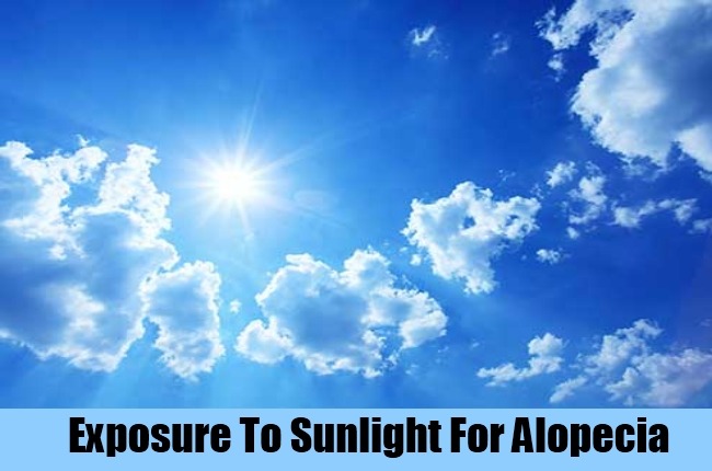 Exposure To Sunlight For Alopecia