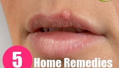 Home Remedies For Fever Blisters