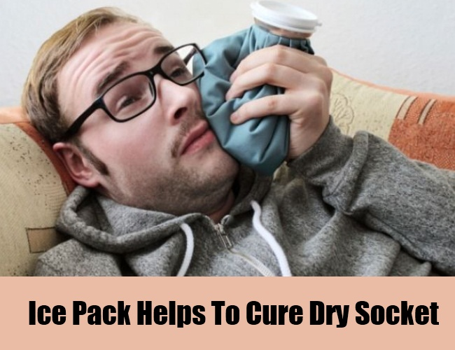 Ice Pack Helps To Cure Dry Socket