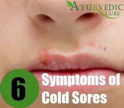 how to tell if you have a cold sore