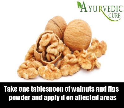 Walnuts and Figs
